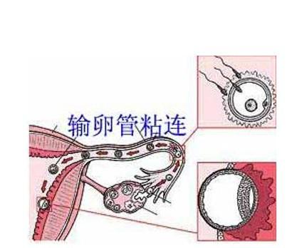 天伦医院输卵管粘连治疗方法推荐