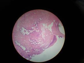 如何治疗宫颈粘液异常