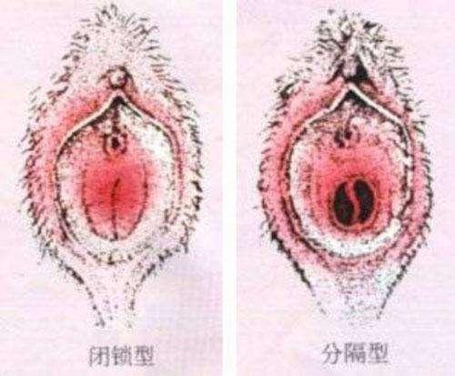 处女膜闭锁的治疗方法有哪些