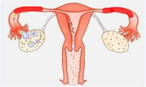 子宫内膜炎的症状,有哪些?