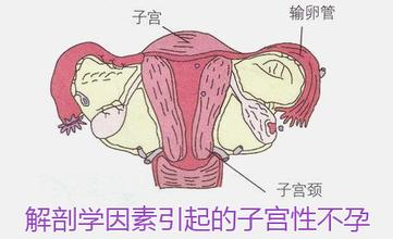 宫颈性不孕,你了解多少