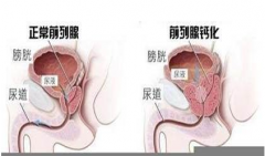 前列腺钙化的症状表现